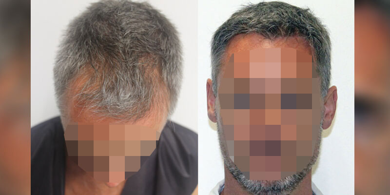 hair transplant before and after