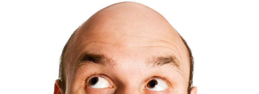 androgenic-alopecia