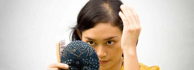 women-hair-loss-treatment