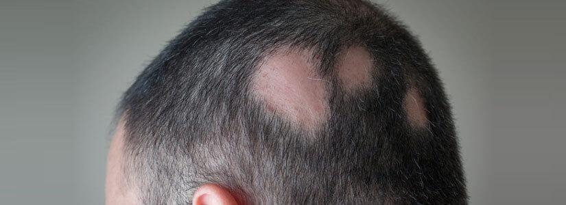 alopecia-areata-treatment