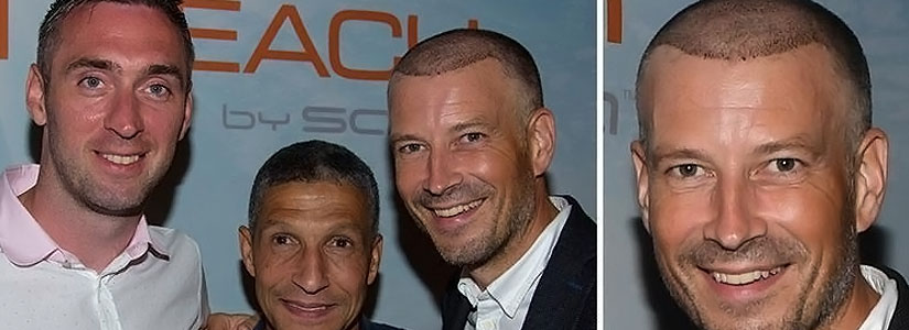 Mark-Clattenburg-gets-a-hair-transplant