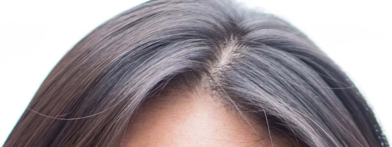 Does Acell Matristem & PRP Result in Genuine Hair Regeneration?
