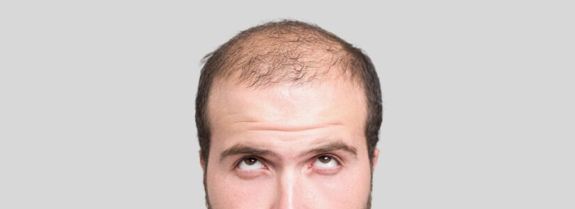 Avoiding shock loss after a hair transplant