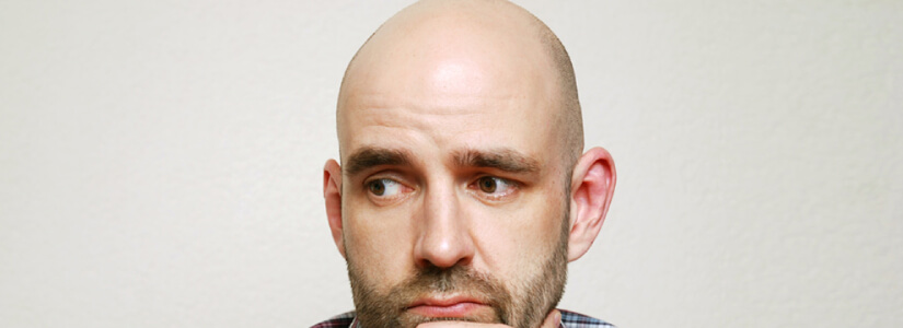 Can we stop the male pattern baldness permanently