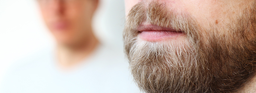 beard-transplant