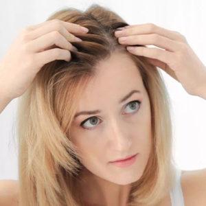 Female Hair Loss Treatment Cost in Dubai