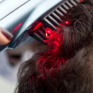 Laser Hair Therapy for Hair Loss in Dubai, Abu Dhabi & Sharjah
