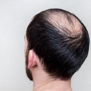 Hair Fillers for Baldness in Dubai, Abu Dhabi & Sharjah