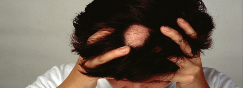 Alopecia Areata Treatment in Dubai, Abu Dhabi & Sharjah
