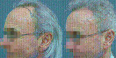 Hair transplant in Dubai