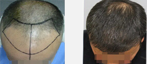 before-after-man-1