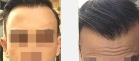 before-after-man-2