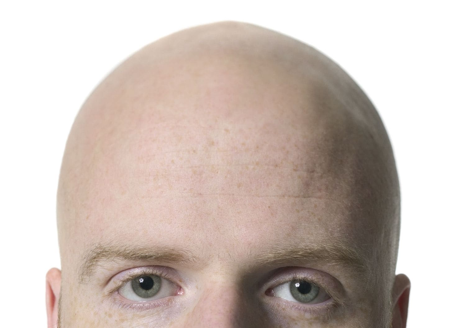 How-to-Regrow-Hair-Naturally-in-Bald-Area (1)