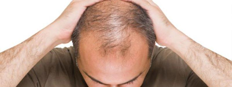 Is Hair Transplant Painful Procedure?14