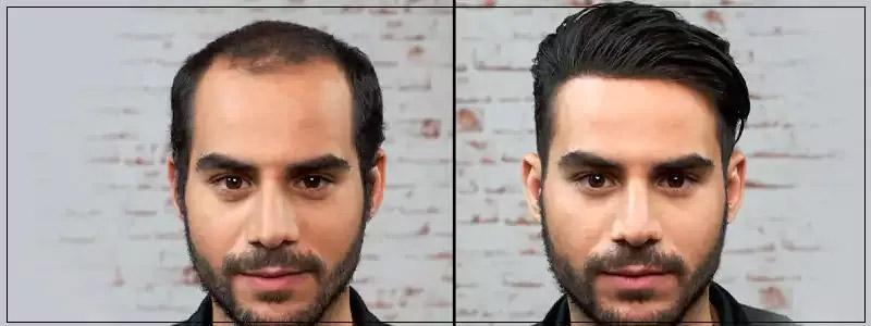 Hair Restoration Dubai