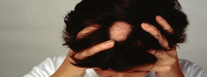 Alopecia Areata Treatment Dubai