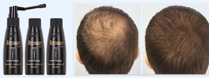 Revivogen for Hair Loss