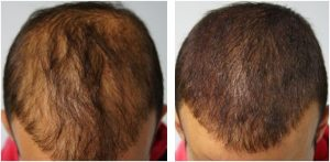 Alopecia before and after