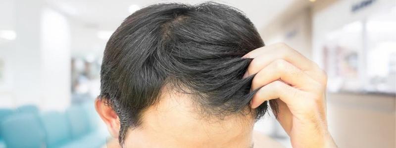 Exosomes for Hair Loss